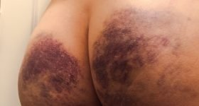 """An example of very heavy bruising or """"marking"""""""