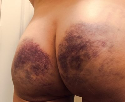 "An example of very heavy bruising or ""marking"""