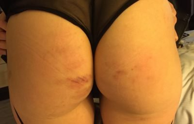 An examples of light bruising on anniebear's booty.
